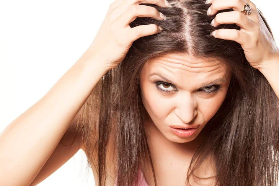 Dandruff Symptoms & Treatment maybe you don't know